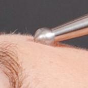 1. Gesichtsmuskel Stimulation Bei der Myo-Anwendung werden die Gesichtsmuskeln einzeln stimuliert.